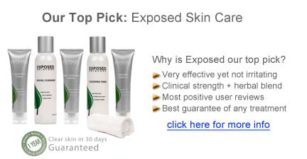 exposed skincare reviews